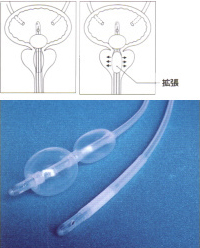 DIBダブルバルーンカテーテル 40mm (16Fr)(製造番号:405416):2本入